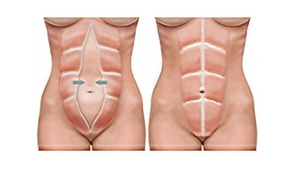A Guide to Getting a Tummy Tuck