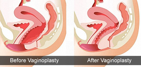 Is Vaginoplasty a Good Choice for You?
