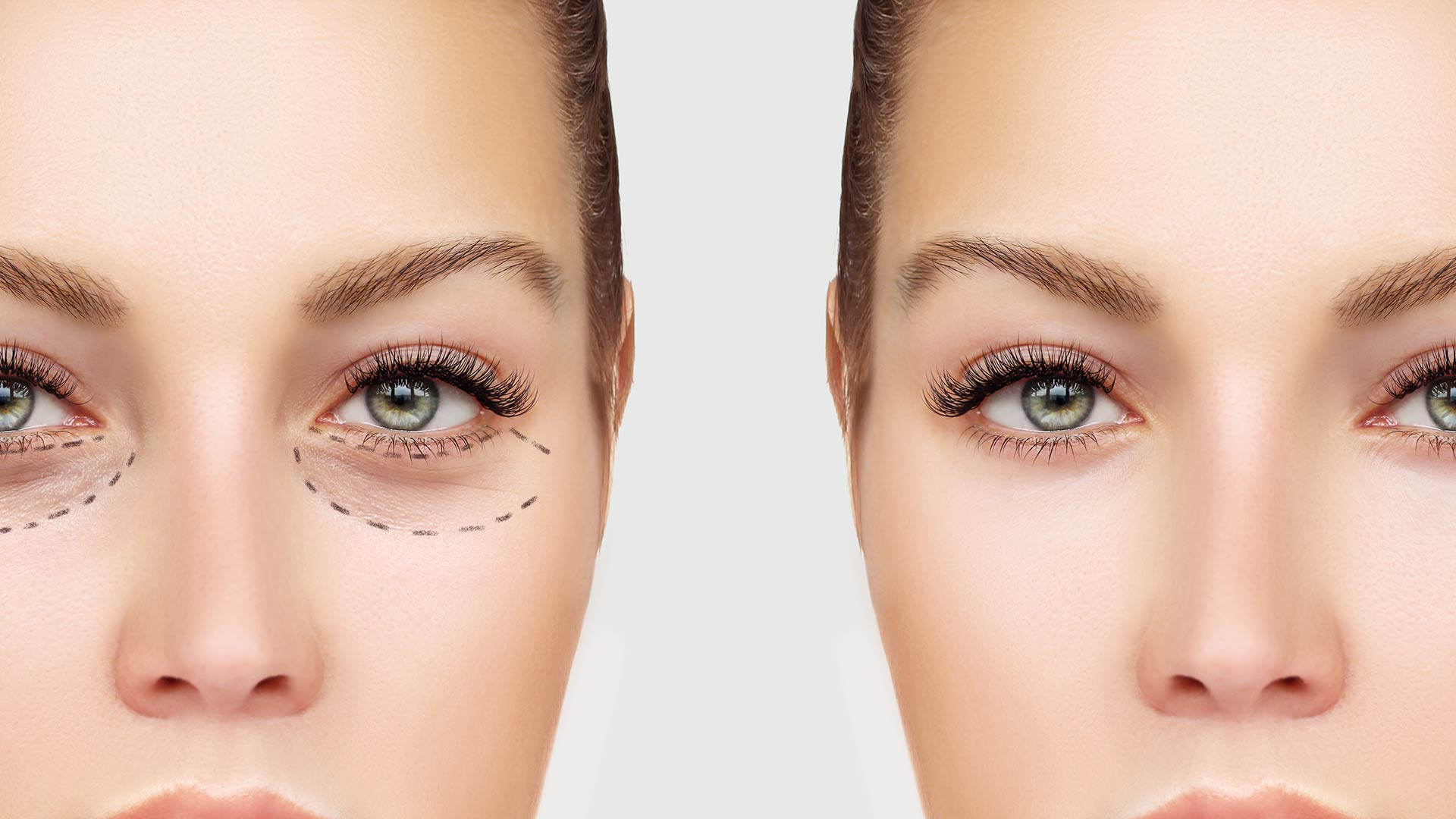 3 Non-Surgical Cosmetic Treatments That Make You Look 10 Years Younger